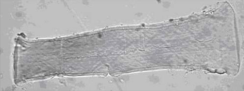 <dl><dt>Tela de forración</dt><dd>Aspecto característico del lino tras añadir a las fibras el reactivo de Schweitzer (500 aumentos)</dd></dl>